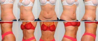 Липосакция в домашних условиях: убираем жир без помощи хирургов