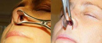 Дефекты носовой перегородки и их коррекция при помощи септопластики