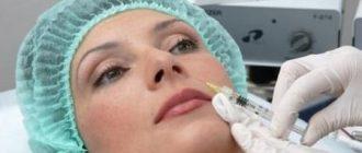 Увеличение объема губ: стоит ли делать - отзывы + фото до и после увеличения