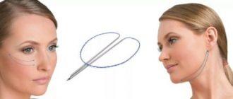 Методика нитевой подтяжки лица