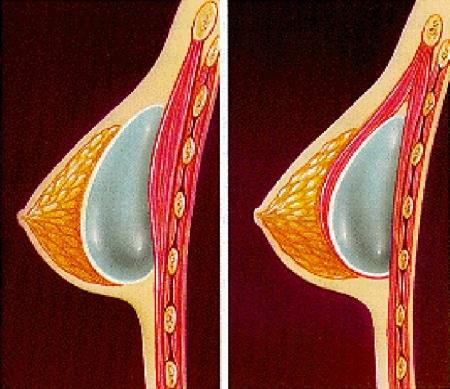Имплантанты для груди стоимость