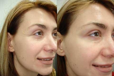 Инъекции ботокса под глазами