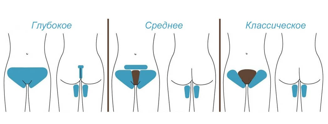 Как удалить волосы подмышками с помощью воска - wikiHow