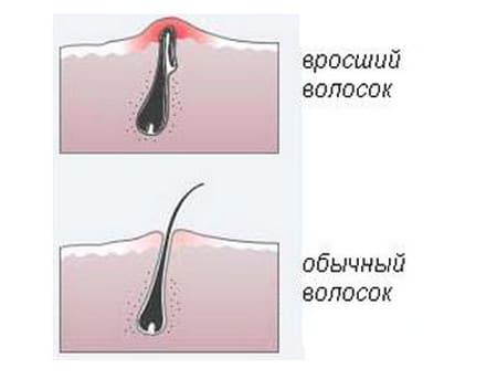 kak-izbezhat-shetini-pri-intimnoy-epilyatsii