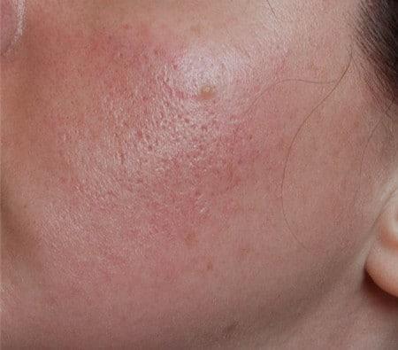 Аллергия на яйца прыщи на лице