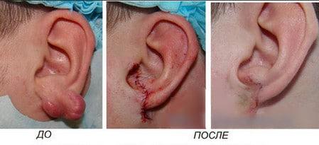 Келоидные рубцы: причины появления и лечение врачебными и народными средствами фото