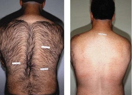 Фотоэпиляция у мужчин Микротоковая терапия Улица 2-я 40 лет Октября Чебоксары