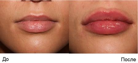 Зуд и жжение в интимной зоне у женщин как лечить Зуд