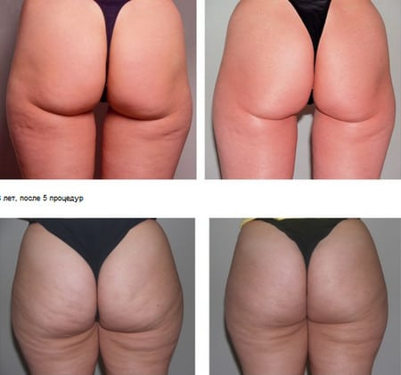 почему не уходит жир на животе