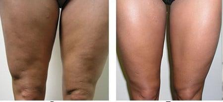 липосакция ноги фото