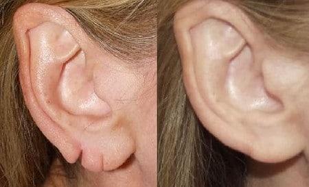 деформация ушных раковин