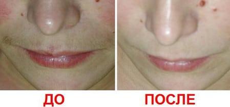 Фотоэпиляция верхней губы противопоказания Эстетическая гинекология Марпосадское шоссе Чебоксары