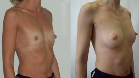 Импланты грудные ментор гарантия