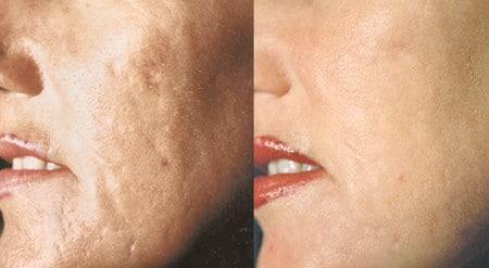 видимые повреждения кожи