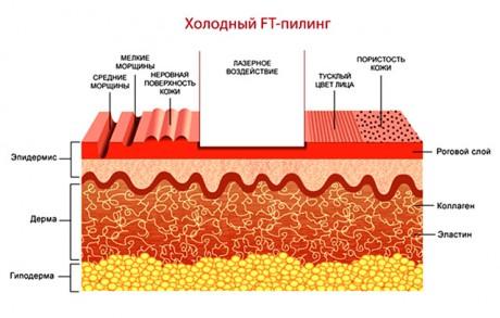 для легких дефектов кожи