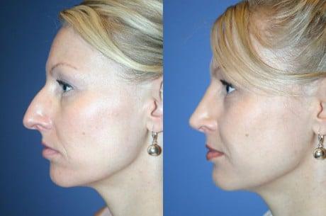 изменить форму носа
