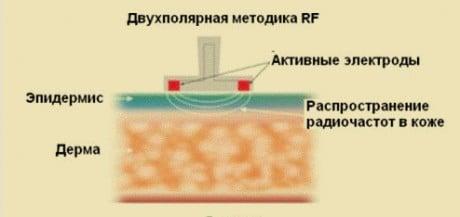 радиолифтинг