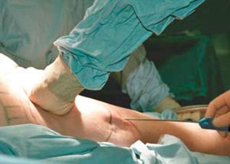 Операция по липосакции