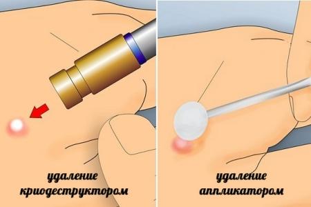 Методы удаления бородавки при помощи низких температур