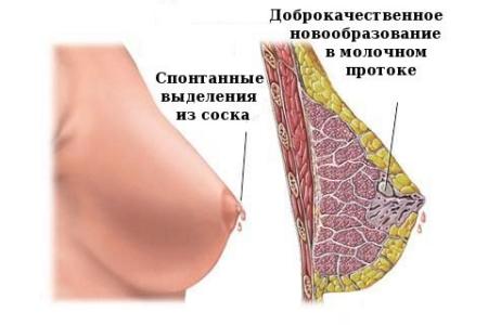 Внтурипотоковая папиллома молочных желез