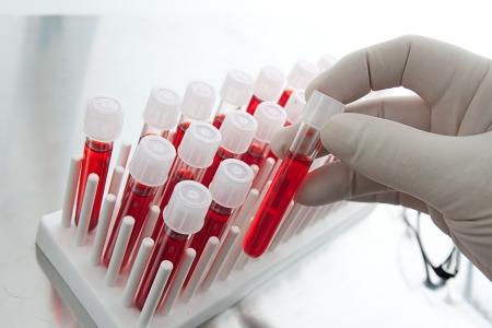 Анализ крови при ВПЧ