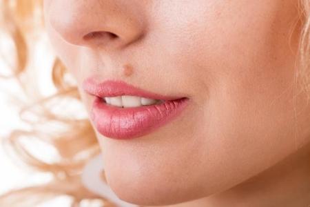 Образование папилломы над верхней губой