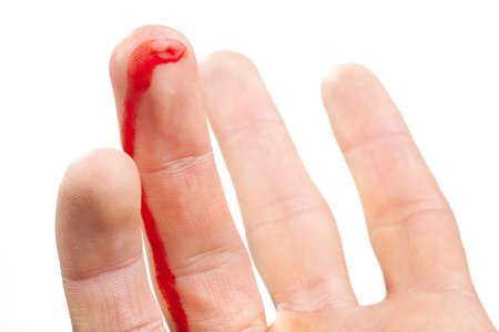 Опасность кровотечения при отсутствии ухода