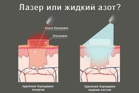 Удаление бородавки лазером или жидким азотом