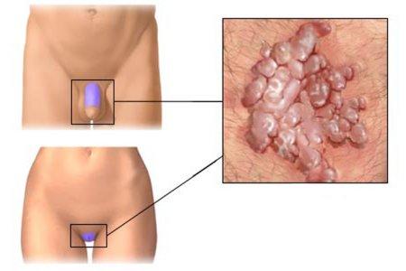Появление папиллом в паху - показание к проведению анализов на вирус ВПЧ