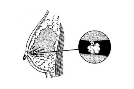 Схема папилломы на соске