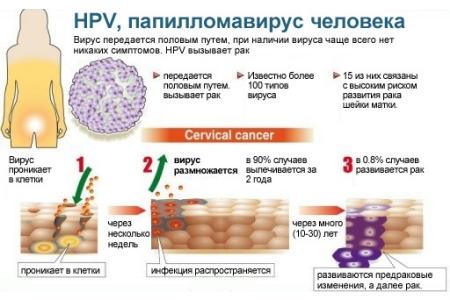 Образование вируса папилломы человека