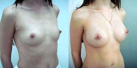 Хирург: Балкизов Вячеслав Валеоьевич. Фото до и после операций