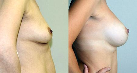 Хируруг: Бытдаев Заур Махарович. Фотографии до и после операции по увеличению груди: