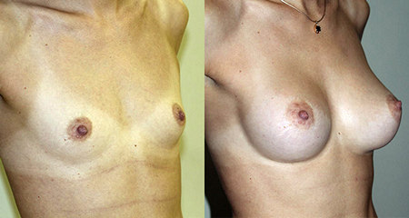 Бытдаев Заур Махарович. Фото до и после увеличения груди2