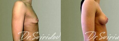Хирург: Свиридов Сергей Владимирович. Авторская методика «Грудь без шва»
