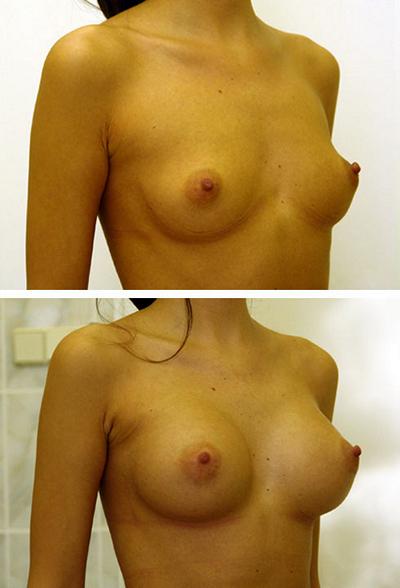 Хирург: Якимец Валерий Григорьевич . Эндоскопическое увеличение груди, анатомические импланты