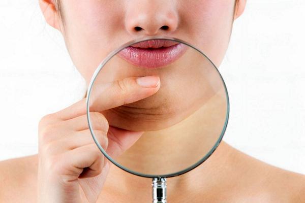 Что необходимо знать о липосакции в зоне подбородка