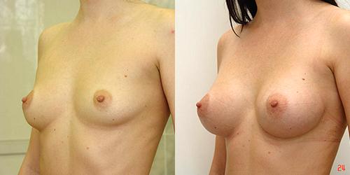 Хирург: Якимец Валерий Григорьевич . Эндоскопическое увеличение груди, анатомические импланты Эндоскопическое увеличение груди. Фото до и 6 месяцев спустя после вмешательства: