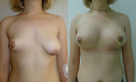 Увеличение асимметричной груди