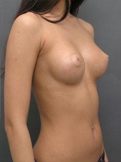 Клиника: «Центр косметологии и пластической хирургии» (Екатеринбург). Фото до и после пластики груди: