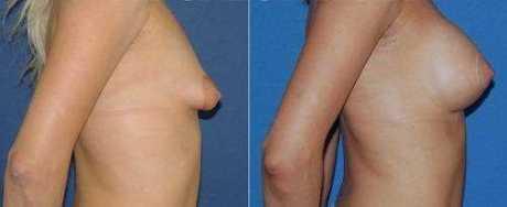 пластике тубулярной груди