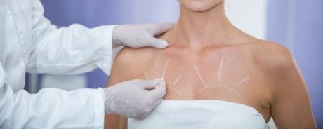 Коррекция птоза хирургическим методом