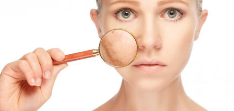 Проблемы с пигментацией кожи - методы лечения и профилактика