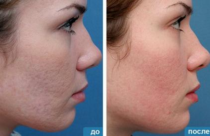 Озонотерапия: до и после