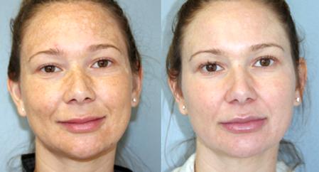 Дермахил: до и после процедуры