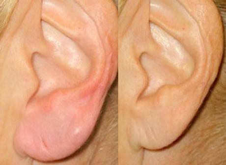 Пластика для мочек ушных раковин