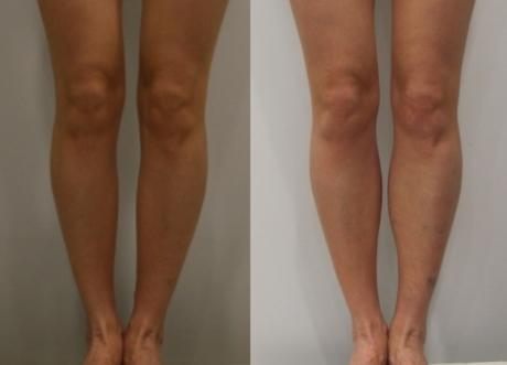 Пластика для коррекции голеней - до и после