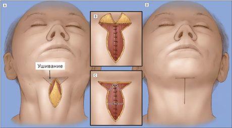 Как проводится операция по подтяжке шеи