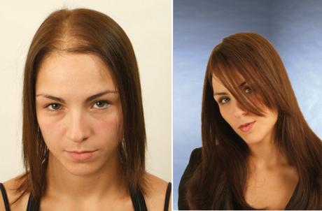 Трансплантация волос до и после