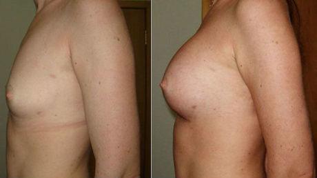 липофилинг грудей - до и после